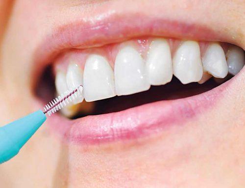 Hogyan használjuk a fogköztisztítót?